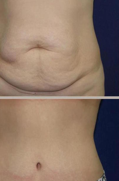 Avoid Saggy Skin from Weight Loss